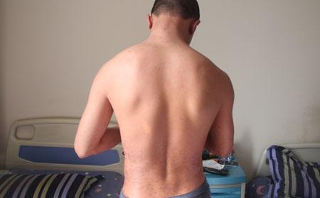 男性银屑病有哪些显著症状?
